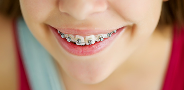 Neutral bay orthodontics shore dental young girl smiling with braces on solutioingenieria
