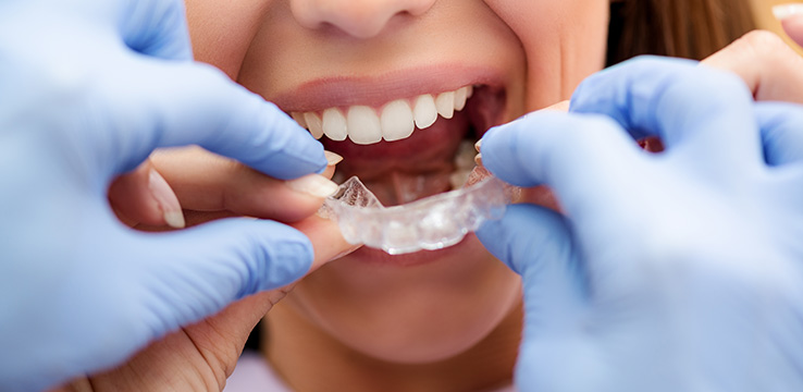 woman being fit for invisilign tooth trays