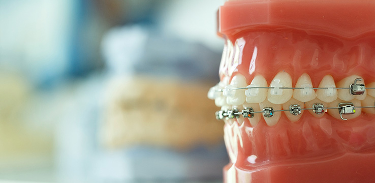 model of teeth and gums used to show how braces fit