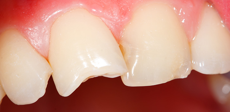 К чему сниться отломившийся передний зуб