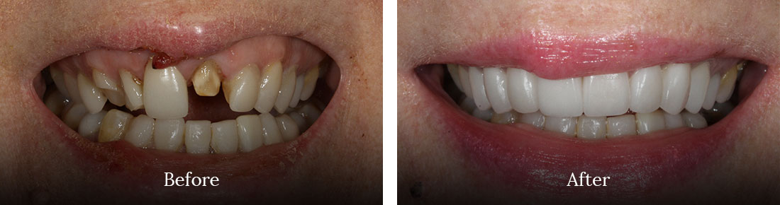before and after shore dental treatment