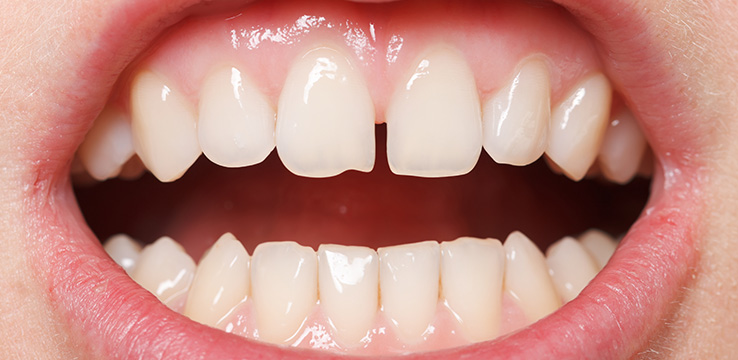 a womans teeth with a large gap between her front teeth