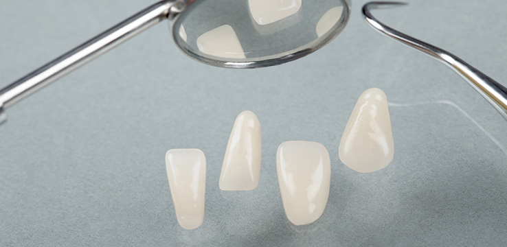 4 composite veneers and a dental mirror