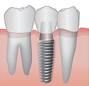 Dental Implant Tooth Replacement