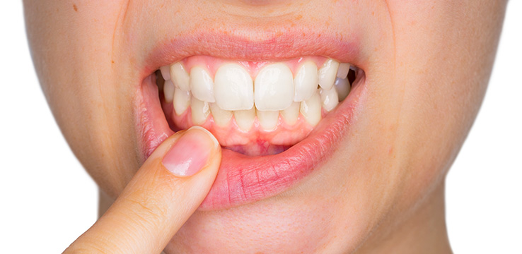 woman holding her lower lip down exposing her gums