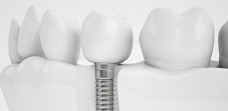 a model of teeth that shows how a dental implant looks under the gums the replacement tooth is screwed in