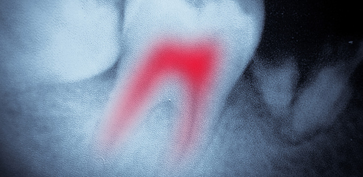 3d image of a tooth with inflamed roots the roots appear in red