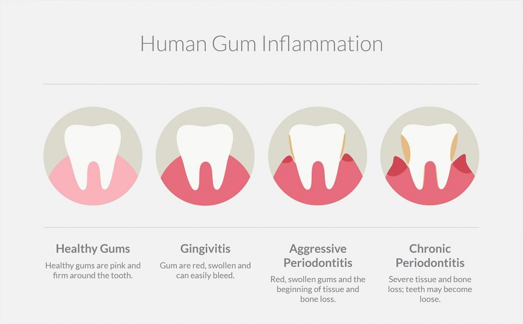 Four stages of healthy gums to periodontitis