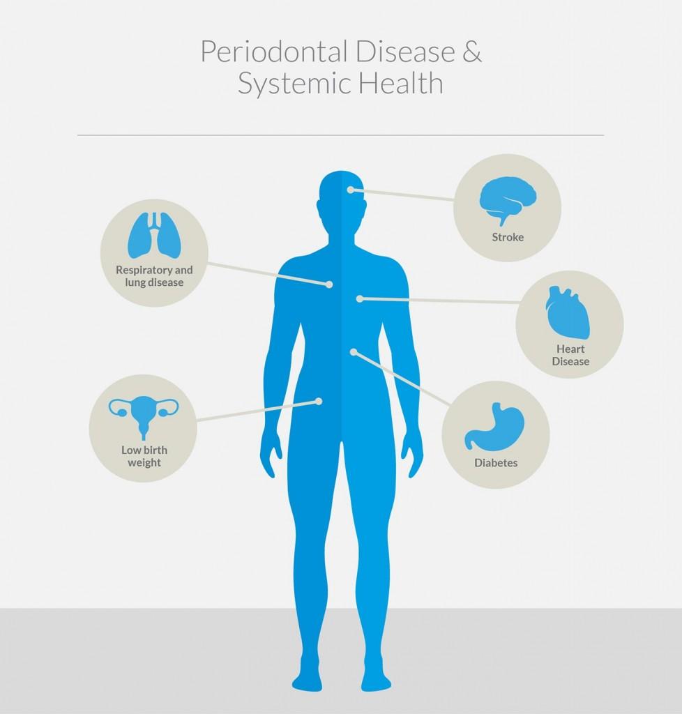 Periodontal Disease & Systemic Health