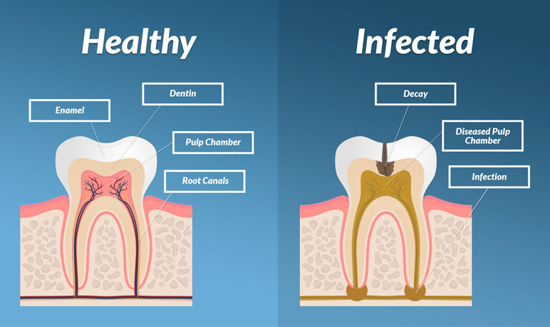 difference between a healthy tooth and a tooth with infected root canal