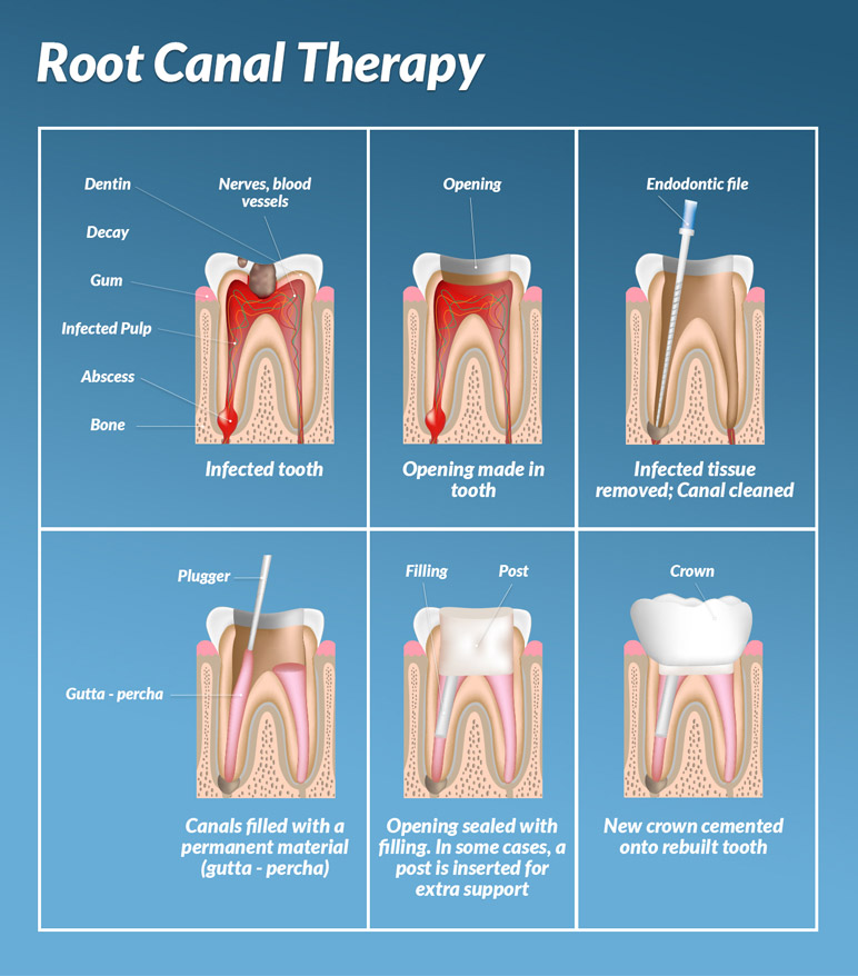 what happens in a root canal treatment?