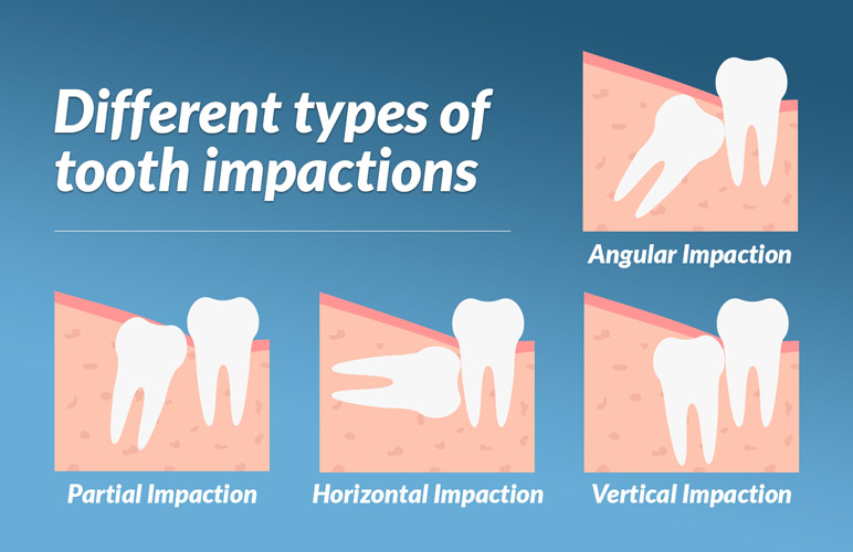 images of kinds of wisdom tooth impactions