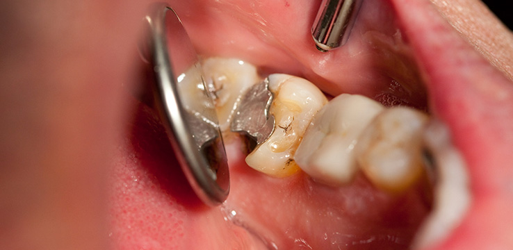 mouth open showing a tooth with silver fillings