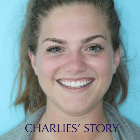 Charlie`s Story
