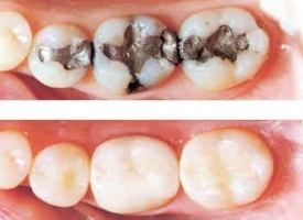 Composite Fillings