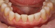 Fillings Replacing Worn Yellow Dentine