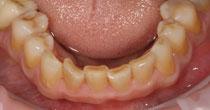 Worn Yellow Dentine