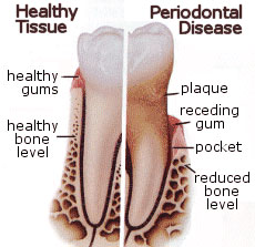 Periodontal and Gum Disease Therapy