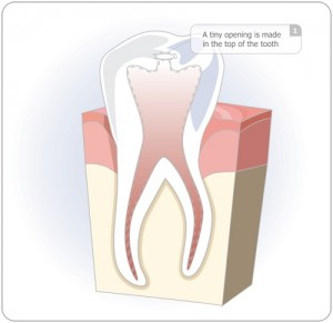 Painless Root Canal Therapy