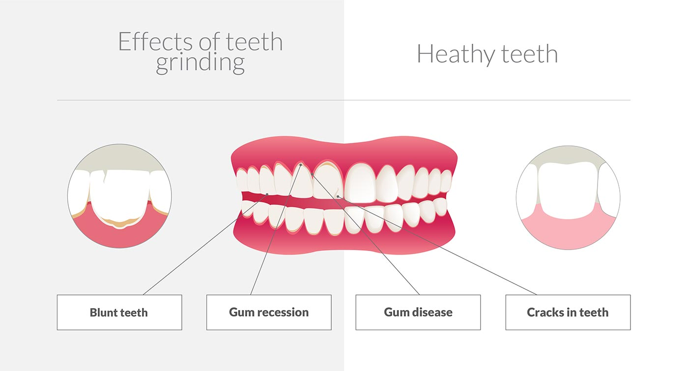 what happens if you grind your teeth infographic