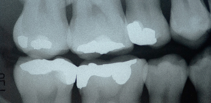 X-ray of a persons teeth with dental fillings