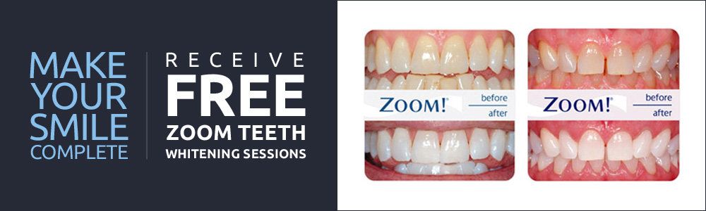 special offer with before and after of teeth that have been whitened