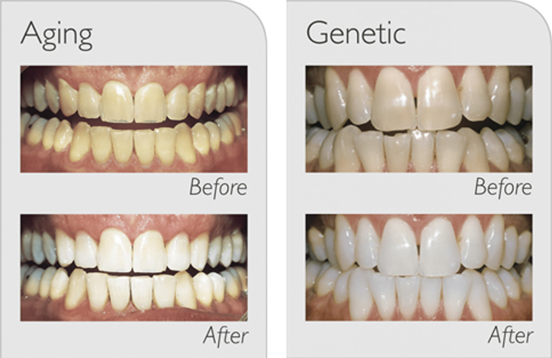 before and after shots of teeth that have been whitened