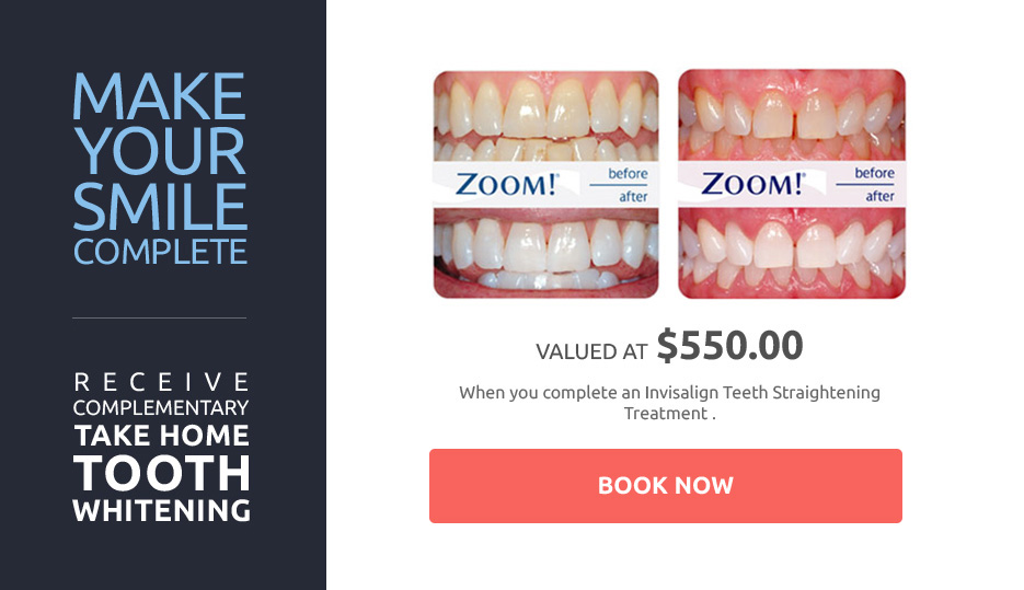 How Much Will My Teeth Whitening Cost Shore Dental
